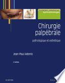 Chirurgie palpébrale