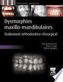 Dysmorphies maxillo-mandibulaires